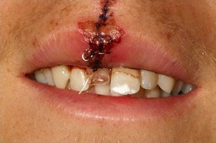 Patient 4 - Two Smashed Front Teeth