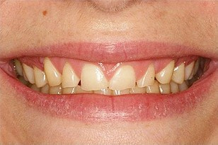 Patient 9 - Teeth wearing and chipping