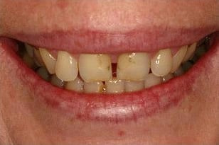 Patient 6 -Teeth staining and wanted the front teeth gap