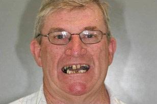 Patient 5 - Sore and Broken Teeth