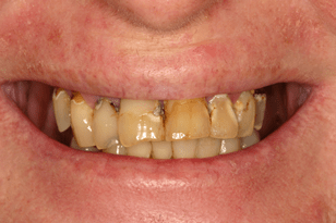 Patient 10 - Breaking teeth
