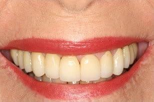 Patient 8 - Weak teeth