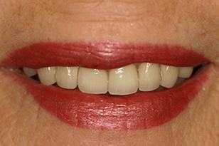 Patient 14 - Broken and discoloured teeth