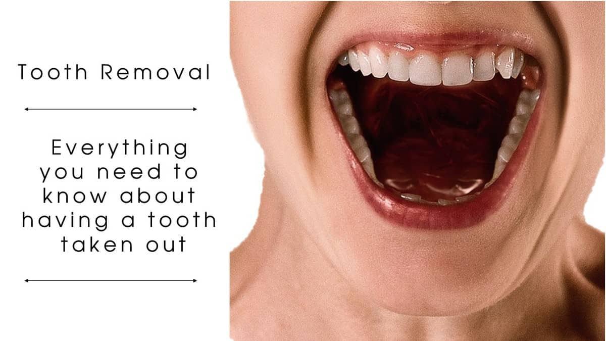 No pain teeth wisdom Pain After