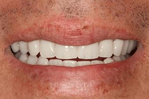 Patient 12 - Fragile teeth