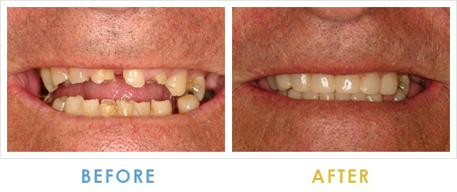 Before and After Bone Augmentation